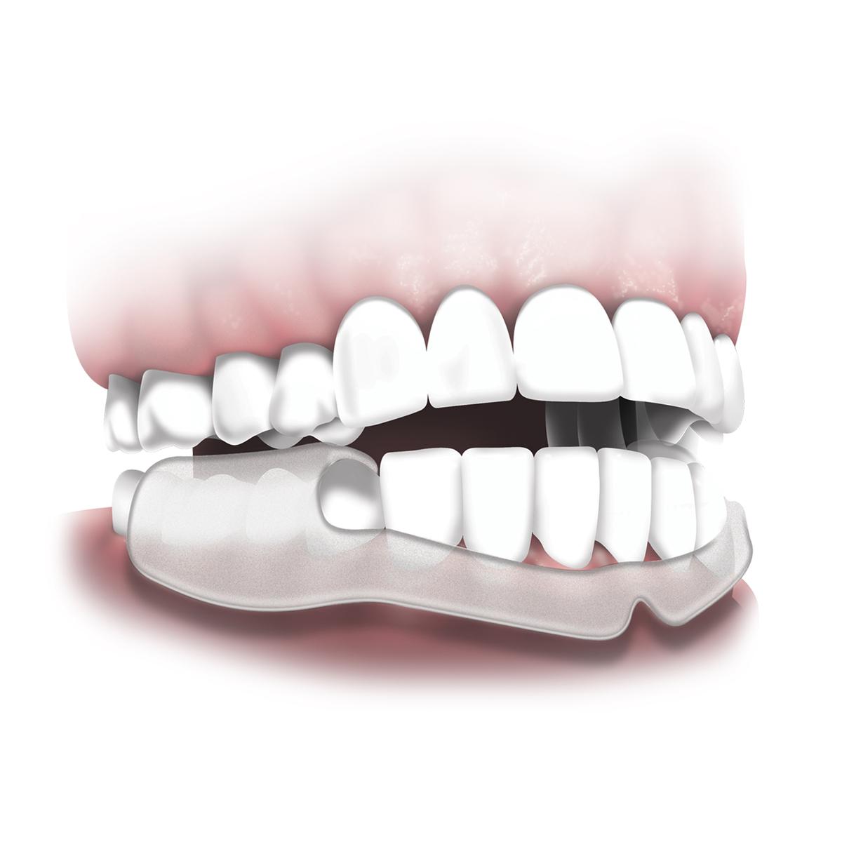 プラッカーズ・歯ぎしり防止イージープロテクター 10個入